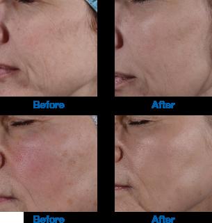 Facial tightening yag laser 1