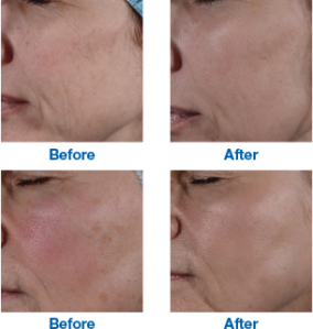 emerge_before_after