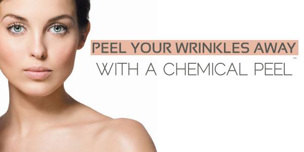 peel-wrinkles-chemical-peel