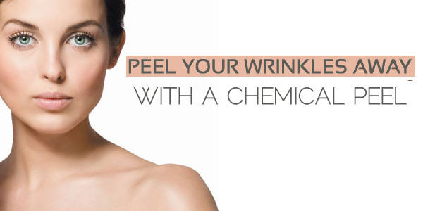 peel-wrinkles-chemical-peel
