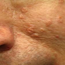 sebaceous_hyperplasia